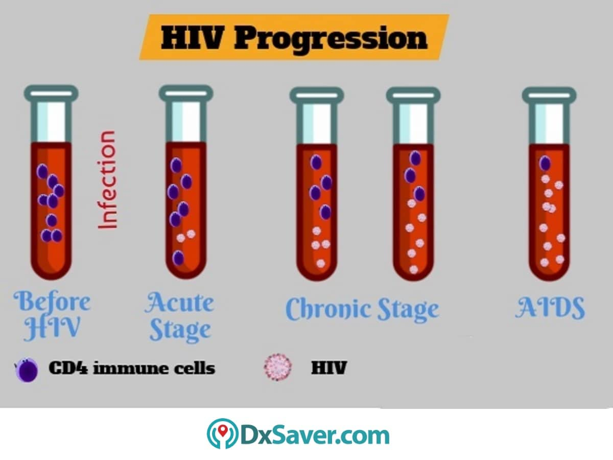 Know more about the HIV progression in different HIV stages.