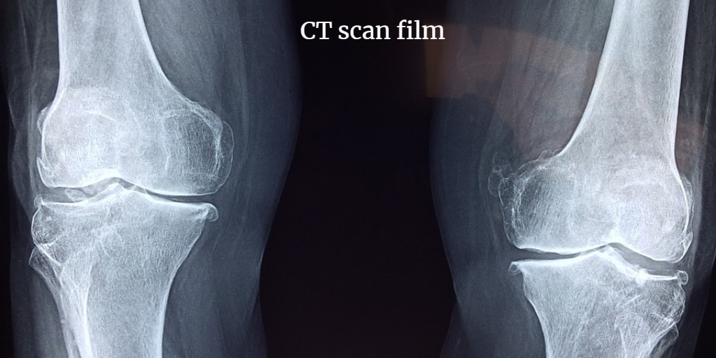 This images clearly shows the film of ct scan knee.