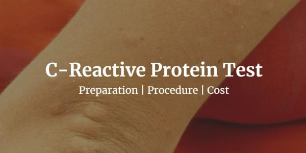 Know about the C reactive protein test like the CRP test cost, normal CRP levels, & more.