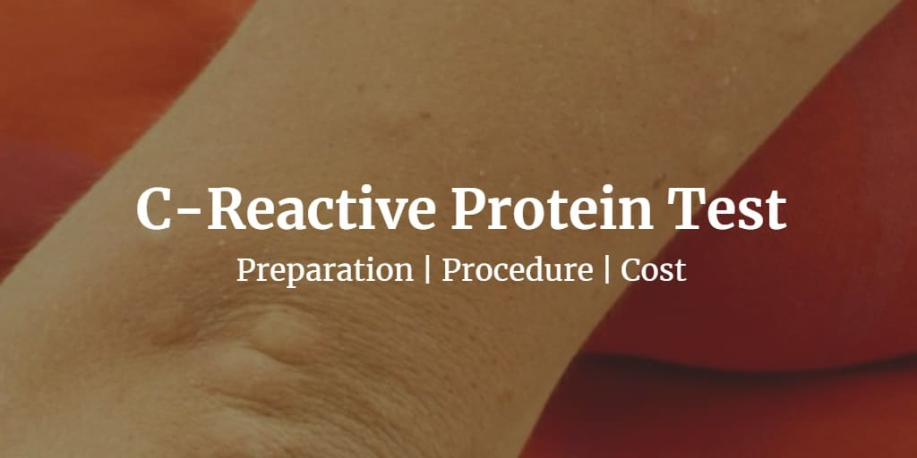Know more about the C reactive protein test including the cost, procedure, and preparation.