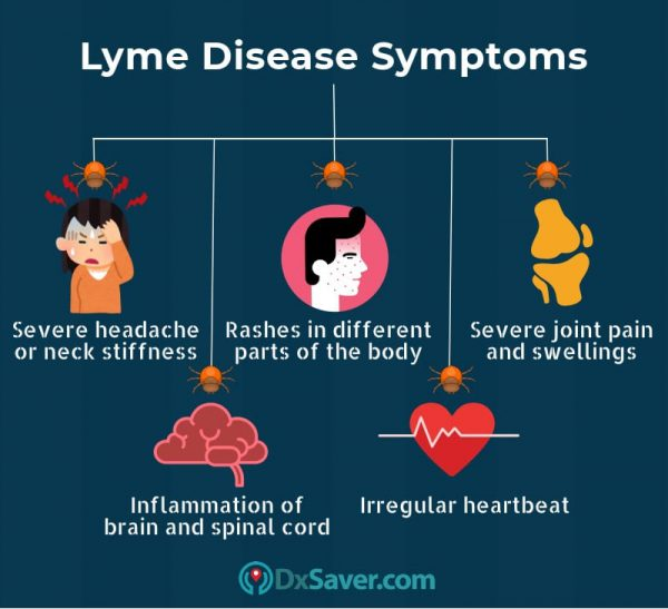 Know more about the Lyme disease stages in human and symptoms.