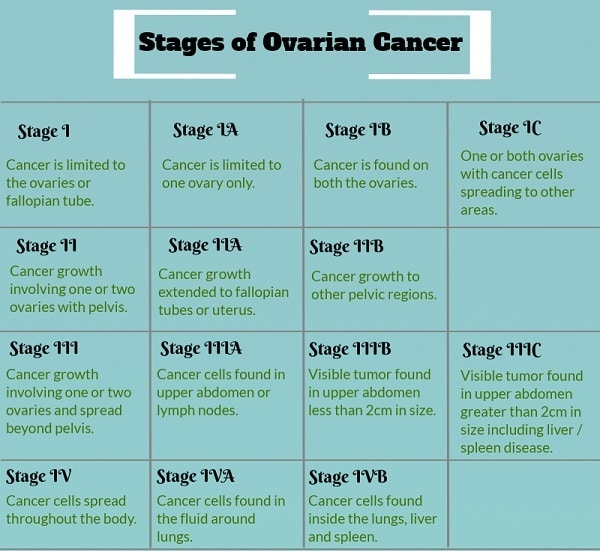 Know about the ovarian cancer stages and more about the 4 stages of ovarian cancer.
