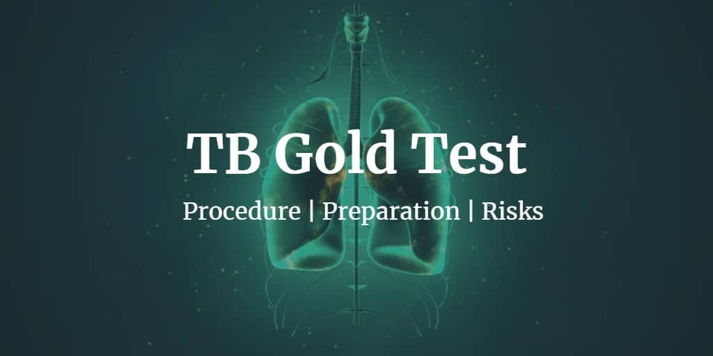 Know more about the TB gold test including the TB gold test cost in the U.S., preparation, procedure, and risks.