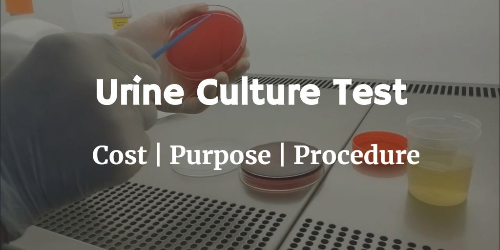 Know more about the urine culture test including the urine culture cost, purpose and procedure of the test.