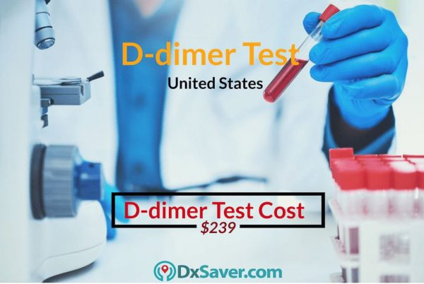 D dimer Test Cost in the US. Know more about what is D-dimer test and procedure