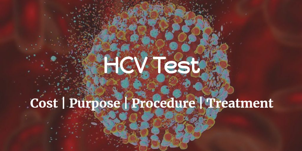 Know more about the hepatitis C virus including the HCV test cost, test purpose and procedure of the test.