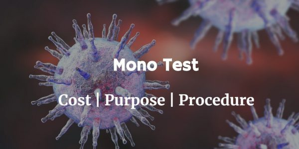 Know more about the mono test including the mono test cost, purpose and procedure of the test.