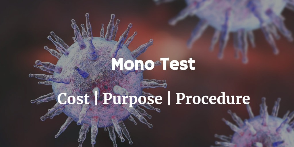 Know more about the mononucleosis test like the mono test cost, signs of mono, mononucleosis treatment & more.