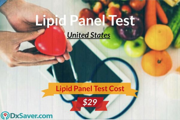 Lipid Panel Test Cost, Know more about what is lipid profile test for, lipid panel levels, cholesterol range and more