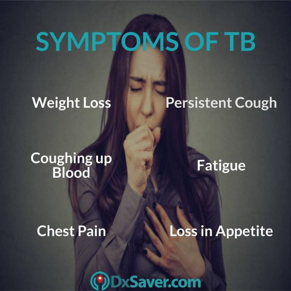 What are the symptoms of active tuberculosis.
