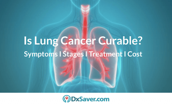 Know about lung cancer stages 4 & 3. Also about early symptoms, types & causes