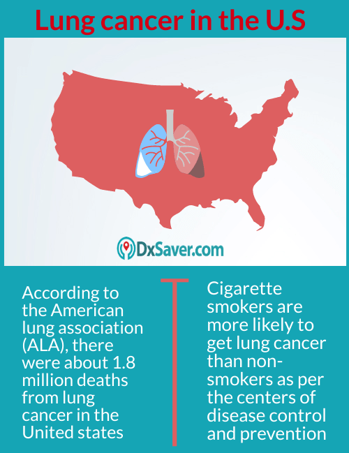 Lung cancer survival rate in the U.S.