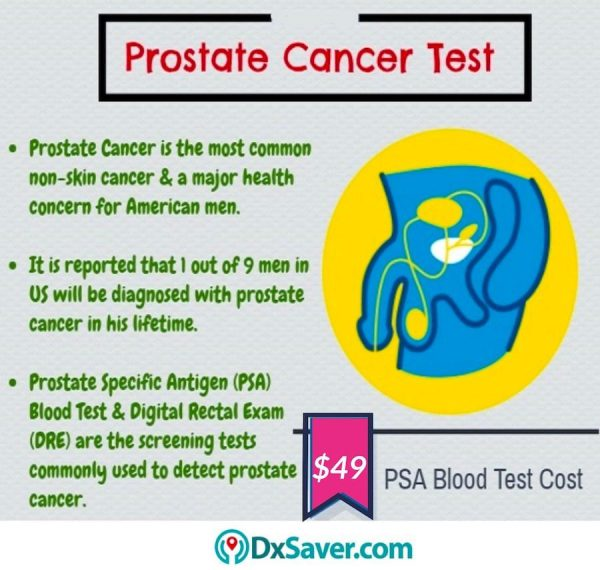 Know more about the causes of prostate cancer in the U.S. & PSA test cost