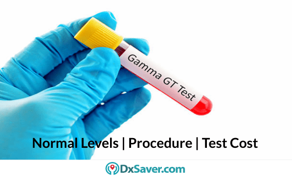 What is GGT blood test? Know about Labs for GGT test & more