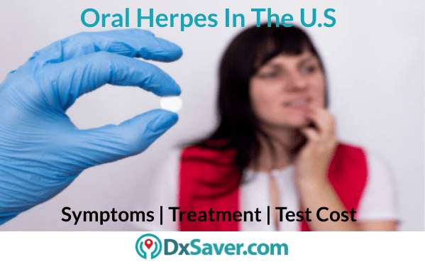 Symptoms of oral herpes and its test kit cost in the U.S