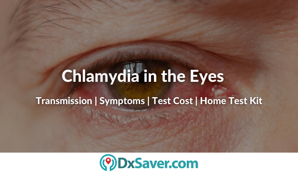 Chlamydia in Eye and Other Symptoms on Men and Women