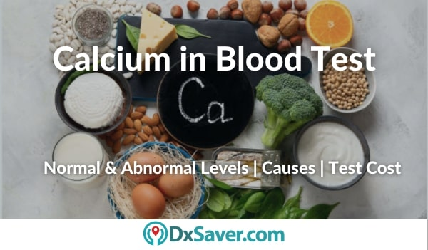 High & Low levels of Calcium in Blood, Calcium levels blood test cost in the US
