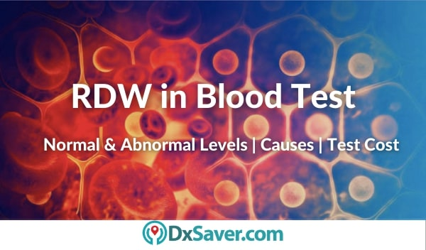 What is RDW in blood test. Normal RDW levels & test cost