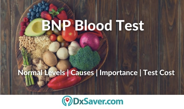 What is BNP Blood Test & High BNP levels mean?