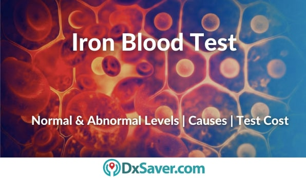 Iron Blood Test Results, High & Low levels of iron causes and more