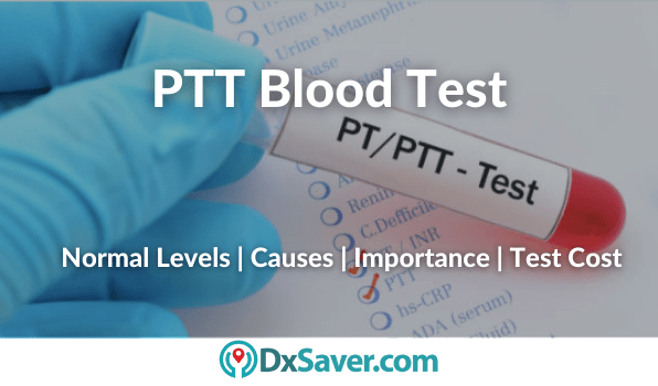 What is PTT Blood Test? PTT Normal levels, test cost in the US and importance of PTT in blood