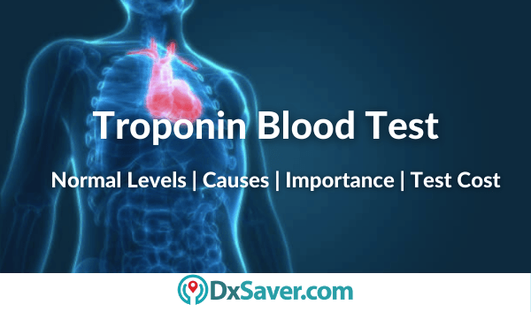 What is Troponin Blood Test & normal levels & high levels mean